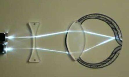 Устройство глаза. Нормальное зрение. Как исправить  близорукость, дальнозоркость.